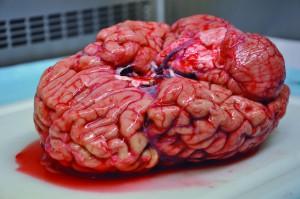 Banque de cerveaux