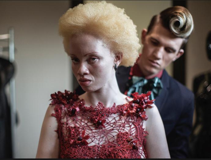 Un concours de beauté pour albinos [vidéo]
